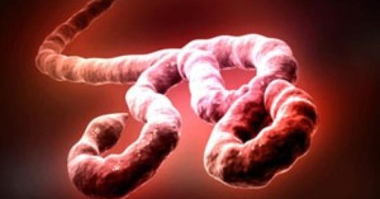 #116 Emerging Viruses 6° : Ebola Virus